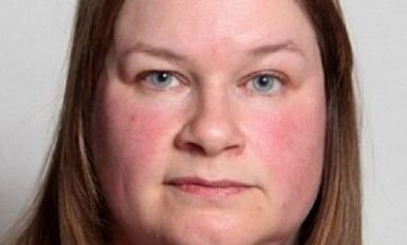 Aπίστευτο: Δείτε την τεράστια αλλαγή στο πρόσωπο γυναίκας μόλις ένα μήνα αφού έκοψε μαχαίρι το κρασί!