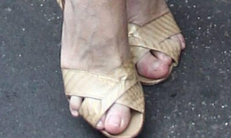 Ποιου fashion icon τα… παραμορφωμένα δάχτυλα ξεπετάχτηκαν μέσα από τα παπούτσια της;