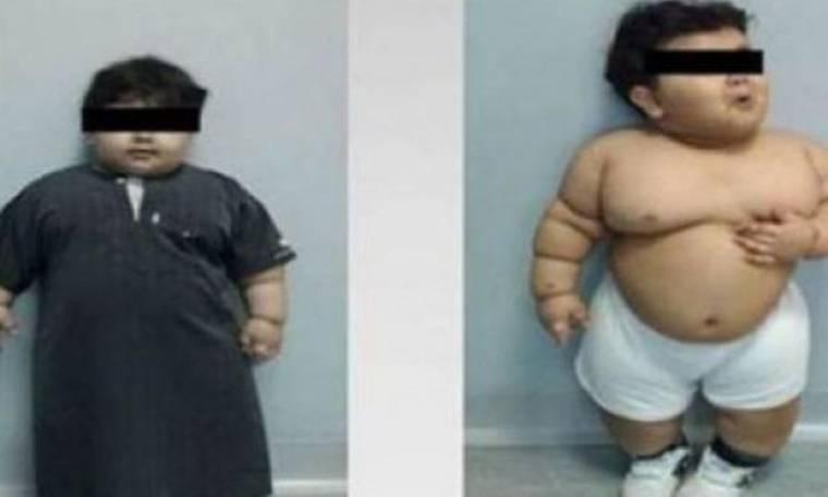 Όταν η παχυσαρκία απειλεί τη ζωή ενός παιδιού: Ο 2χρονος που έγινε ο νεότερος ασθενής που υπεβλήθη σε γαστρεκτομή!