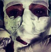 Με γάζες στο πρόσωπο Έλληνας σχεδιαστής. Η τρομακτική φωτογραφία που ανέβασε στο instagram. Τι συνέβη;
