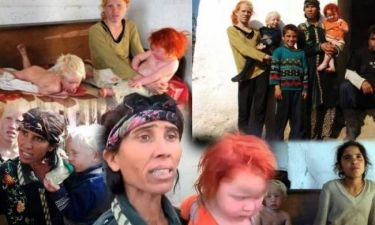 Daily Mail: «Παιδί μας η μικρή Μαρία - Έχουμε γονίδιο αλμπίνου»