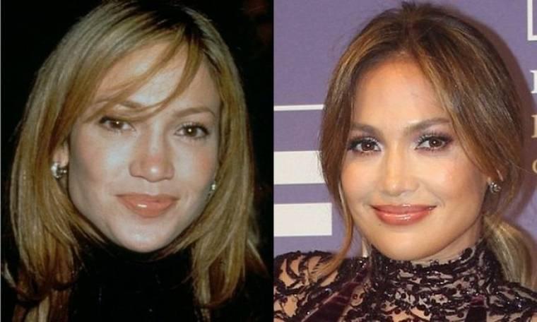 Έξαλλη η Jennifer Lopez με τον πλαστικό χειρούργο που υποστήριξε πως έχει κάνει πλαστικές!