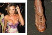 Και οι διάσημες έχουν… άσχημα πόδια