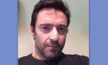 Hugh Jackman: Ανησυχία για πιθανό καρκίνο του δέρματος