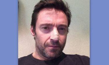 Σοκ στο Χόλιγουντ! Μετά τον Τζάκμαν και άλλος ηθοποιός με καρκίνο του δέρματος