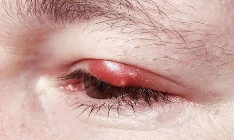 Κριθαράκι στο μάτι: Τι είναι και πώς αντιμετωπίζεται