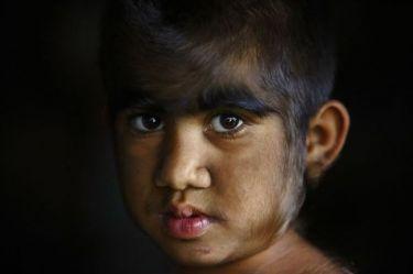 Οικογένεια «λυκανθρώπων» από το Νεπάλ μεταμορφώνεται, κάνοντας λέιζερ για την αφαίρεση τριχοφυίας