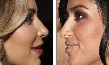 Τελικά έκανε ή όχι πλαστική στην μύτη της η Kim Kardashian;