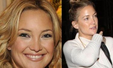 Πού πήγε η μύτη σου βρε Kate Hudson; Δείτε photos πριν και μετά τις επεμβάσεις!
