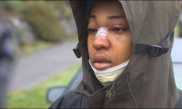 Απίστευτο: Σώθηκε από σφαίρα χάρη στα γυαλιά της