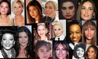 Διάσημες κυρίες πριν και μετά τις πλαστικές!