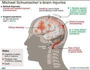 Μίκαελ Σουμάχερ: Γαλλικό πρακτορείο δημοσιεύει ακτινογραφία του εγκεφάλου του