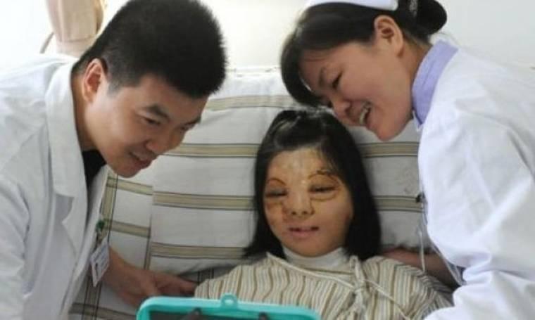 Δεκαεφτάχρονο κορίτσι υπέστη σοβαρά εγκαύματα και επανεμφύτευσε νέο πρόσωπο στο… στήθος της! (φωτογραφίες)