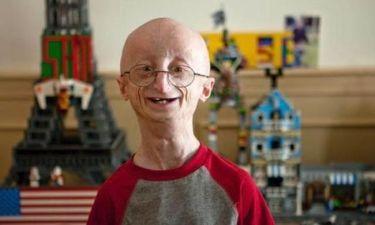 «Έφυγε» ο 17χρονος Σαμ που έμοιαζε με 90χρονο