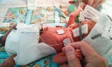 Πατέρας φωτογραφίζει την πρόοδο του μικροσκοπικού πρόωρου μωρού του (φωτογραφίες)