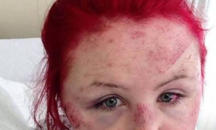 Της άφησαν αποτύπωμα παπουτσιού πάνω στο πρόσωπο της!
