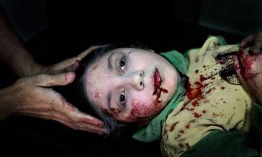 Η φωτογραφία που πήρε κέρδισε βραβείο της Unicef και αποτυπώνει το σκληρό πρόσωπο του πολέμου