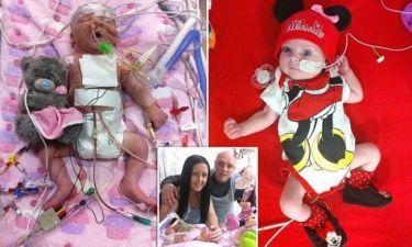Συγκλονιστικό: Νεογέννητο μωράκι παλεύει για να κρατηθεί στη ζωή