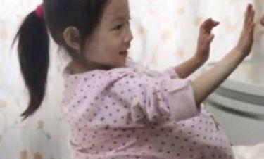 Τετράχρονη μοιάζει με έγκυο 9 μηνών λόγω...(εικόνες)