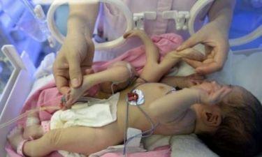 Εικόνες που σοκάρουν: Μωρό γεννήθηκε με 8 άκρα