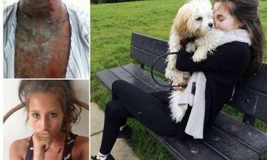 19χρονες δέχθηκαν απάνθρωπη επίθεση με οξύ (pics)