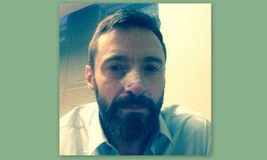 Hugh Jackman: Δεύτερη επέμβαση για να αφαιρέσει καρκίνωμα στο δέρμα του και το μήνυμά του