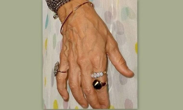Σε ποια ανήκει αυτό το γερασμένο χέρι;