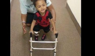 Δύναμη ψυχής! Το μικρό αγοράκι που κάνει τα πρώτα του βήματα με προσθετικό μέλος (βίντεο)