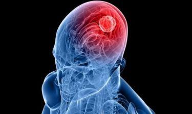 Καρκίνος στον εγκέφαλο: Τα πρώιμα σημάδια που πρέπει να προσέχετε