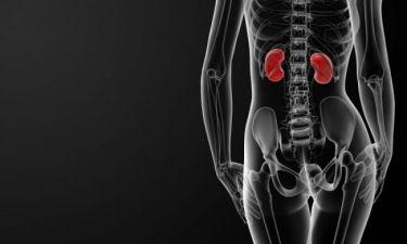 Πέτρες στα νεφρά: Τι είναι και πώς θα τις αποφύγετε