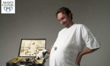 Σύνδρομο Couvade: Όταν τα συμπτώματα εγκυμοσύνης παιδεύουν τους… άντρες!
