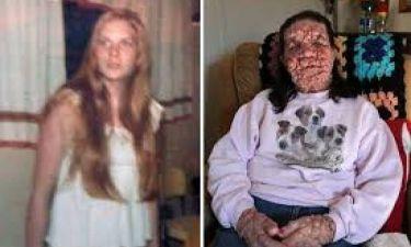 Τραγικό: Το πρόσωπο της είναι γεμάτο φουσκάλες (σκληρές εικόνες)