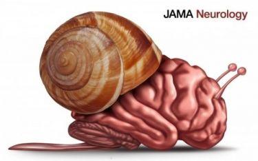 Υπέρταση: Γιατί επηρεάζει αρνητικά την εγκεφαλική λειτουργία