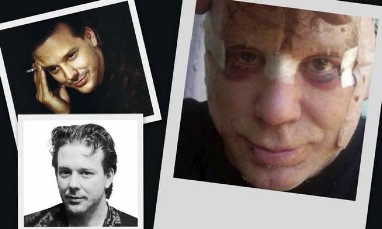 Σοκαριστική η εικόνα του Mickey Rourke στα 62 του χρόνια! (φωτό)