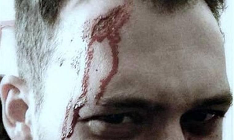Τι συνέβη σε πασίγνωστο Έλληνα ηθοποιό; Με αίματα στο πρόσωπο ο…
