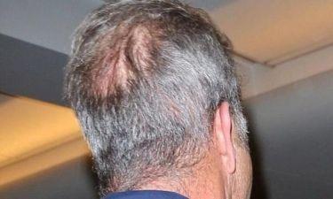 Δε θα πιστεύετε ποιος άρχισε να χάνει τα μαλλιά του!