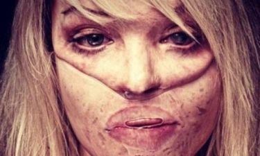 Η συγκλονιστική εξομολόγηση του πρώην μοντέλου, που δέχτηκε επίθεση στο πρόσωπο με οξύ