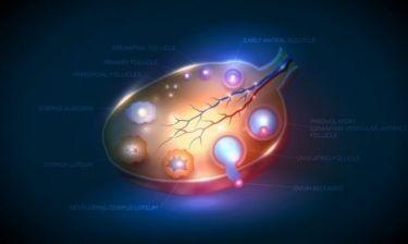 Κύστεις στις ωοθήκες: Πόσο επικίνδυνες είναι;