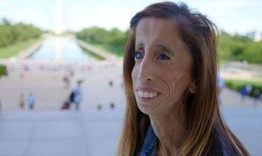 «Η πιο άσχημη γυναίκα στον κόσμου» κάνει τη δική της εκστρατεία κατά του bullying