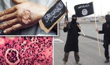 Σαρκοβόρο παράσιτο απειλεί το Ισλαμικό Κράτος