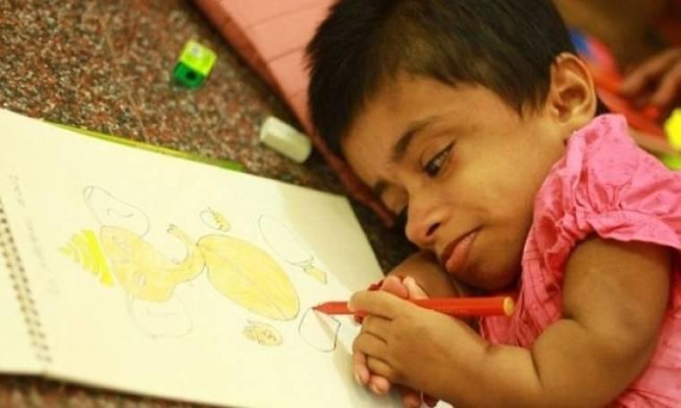 Έφηβη «παγιδευμένη» στο σώμα δίχρονης (εικόνες - βίντεο)