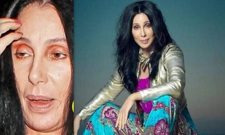 «Αργοπεθαίνει» η Cher! Οι δύσκολες ώρες με το σοβαρό πρόβλημα υγείας!