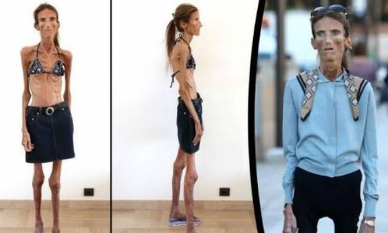 Τραγωδία: Κι όμως αυτό το κορίτσι ήταν κάποτε εντυπωσιακό μοντέλο