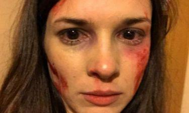 Με μώλωπες και αίματα στο πρόσωπο η Ευγενία Δημητροπούλου