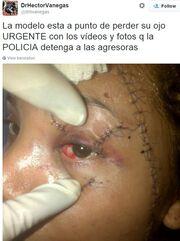 Βίντεο-ΣΟΚ: Μοντέλο δέχθηκε επίθεση! Τη ξεγύμνωσαν και τη χτύπησαν με σπασμένα μπουκάλια