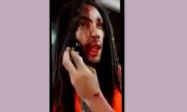 Απίστευτο! Πυροβόλησαν τραγουδιστή στο κεφάλι και εκείνος έβγαλε selfie βίντεο