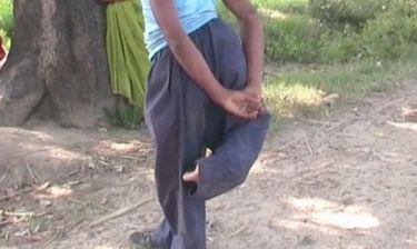 Ινδία: Ο 20χρονος «δαίμονας» με τα τέσσερα πόδια (pics&videos)