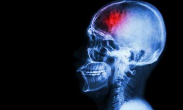 Η ουσία που αποτρέπει πιθανό εγκεφαλικό και πού θα τη βρείτε