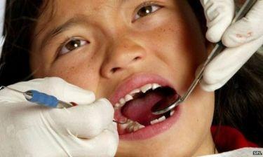Τι είναι οι προληπτικές καλύψεις οπών και σχισμών των παιδικών δοντιών;