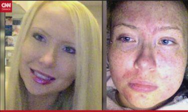 Η γυναίκα που είναι αλλεργική στον ιδρώτα και τα δάκρυά της